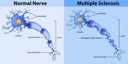 Normal nerve and multiple sclerosis illustration