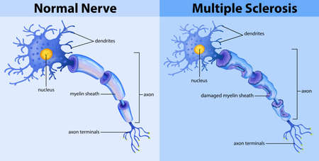 Normal nerve and multiple sclerosis illustration