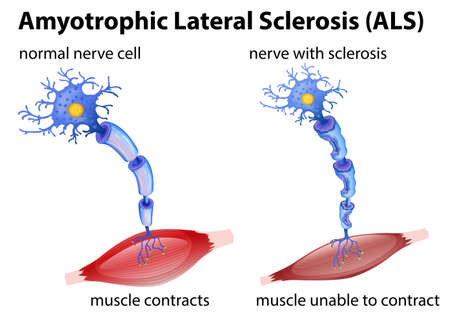 Amyotrophic lateral sclerosis concept illustration
