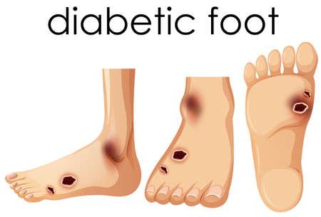 Menselijke voet met diabetische illustratie