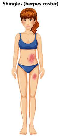 Abbildung einer Frau mit Gürtelrose auf der Haut