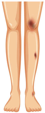 Pair of legs with bruises illustration