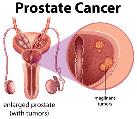 Männliche Prostatakrebs-Diagrammillustration