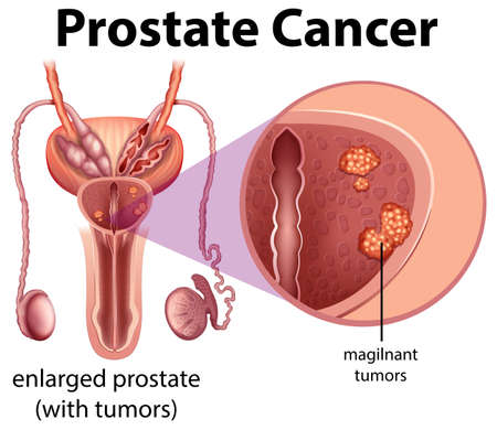 Male Prostate Cancer diagram illustration