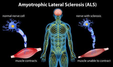 Anatomía de la esclerosis lateral amiotrófica. Ilustración vectorial Ilustración de vector