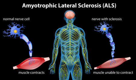 Anatomy of amyotrophic lateral sclerosis. Vector illustration