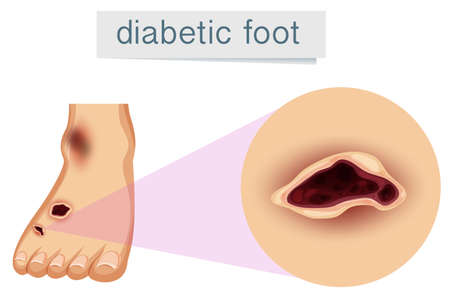 A human foot with diabetic. Vector illustration Illustration
