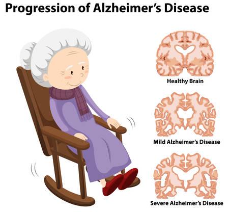 Progression of alzheimer's disease illustration Illustration