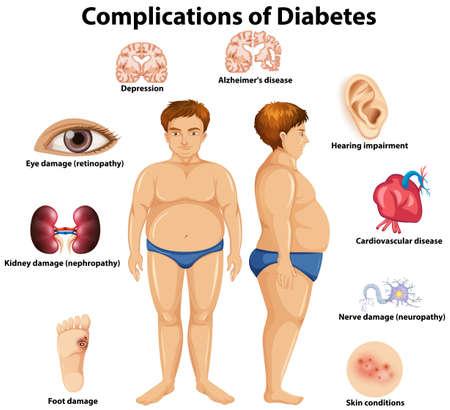 Complicaties van diabetes concept illustratie