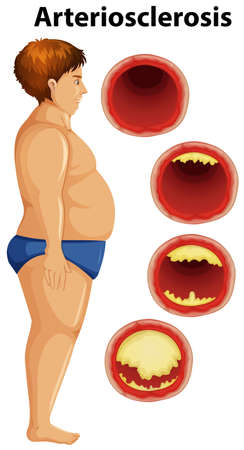 Fat man and arteriosclerosis illustration