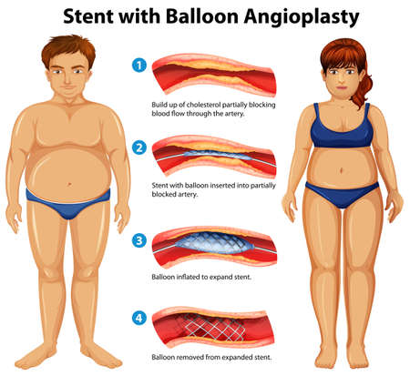 Stent with balloon angioplasty illustration