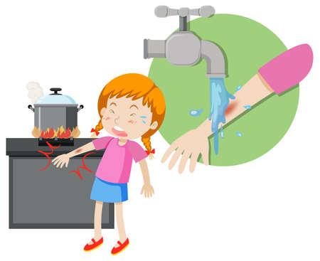 A girl first aid burn illustration