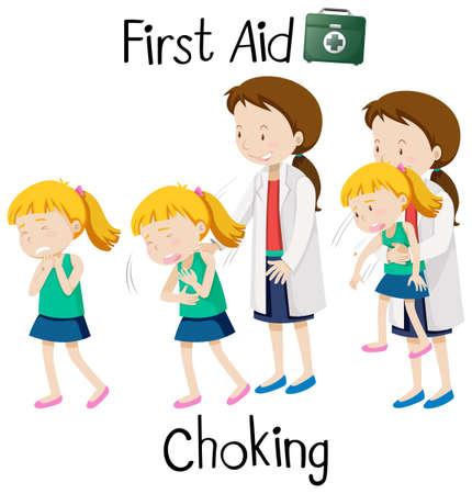 First aid for chocking illustration Illustration