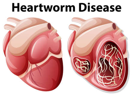 Heartworm disease diagram white background illustration