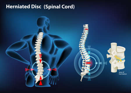 Diagram showing herniated disc in human illustration