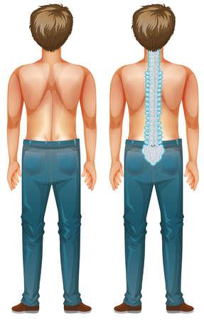 Man showing spinal cord injury illustration  イラスト・ベクター素材