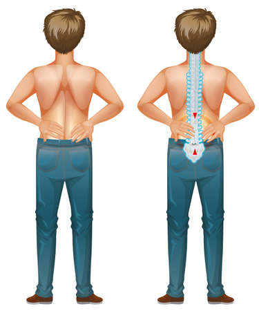 Human male with back pain illustration