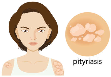 Diagram showing woman with pityriasis illustration