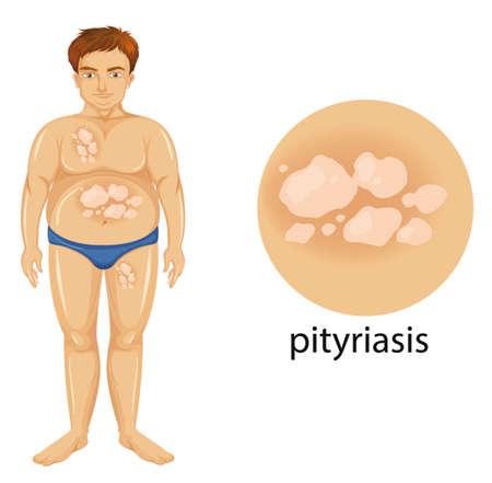 Diagram showing man with pityriasis illustration