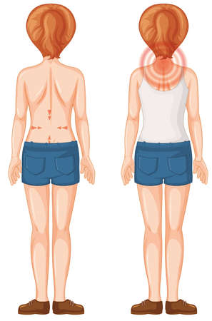 Back of human female with pain spots illustration