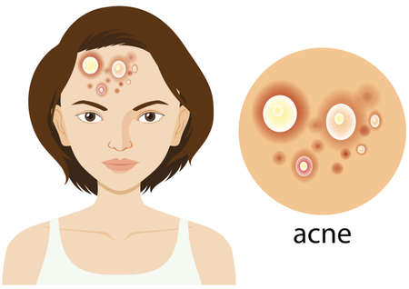 Diagram showing woman with acne problem illustration
