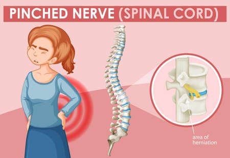 Woman with pinched nerve on poster illustration