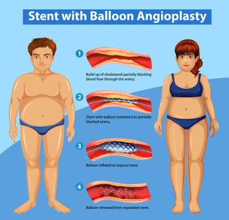 Diagrama que muestra el stent con ilustración de angioplastia con balón Ilustración de vector