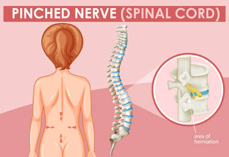 Diagram showing pinched nerve in human illustration