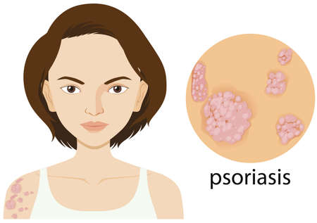 Woman with psoriasis on poster illustration