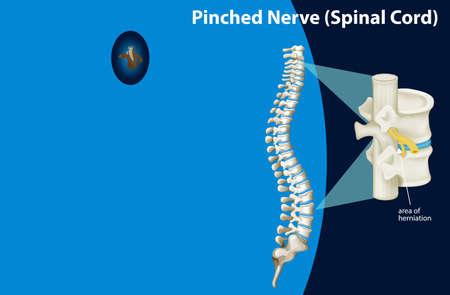 Diagram showing pinched nerve illustration