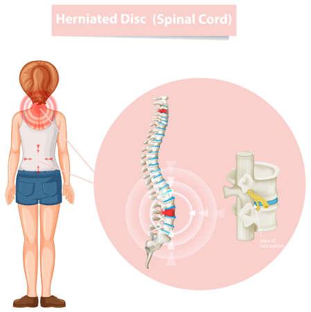 Diagram showing herniated disc illustration Illusztráció
