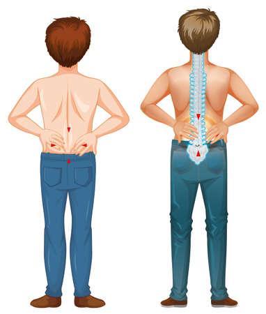 Man showing pain spot in the back illustration Illusztráció