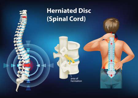 Diagram showing herniated disc illustration 向量圖像