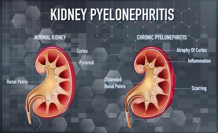 Informative illustration of Pyelonephritis illustration