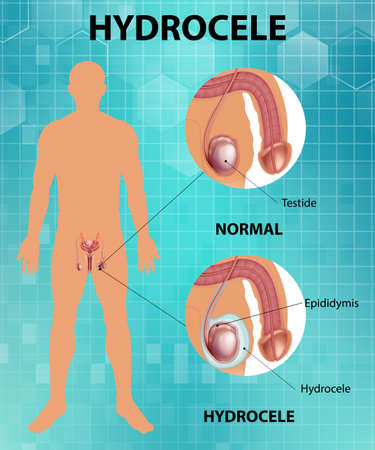 Medical poster showing different between male normal testicle and hydrocele illustration