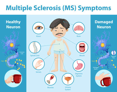 Multiple sclerosis (MS) symptoms information infographic illustration