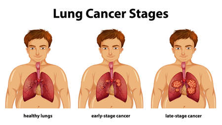 Informative illustration of lung cancer stages illustration 向量圖像