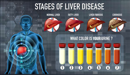 Stages of liver disease illustration