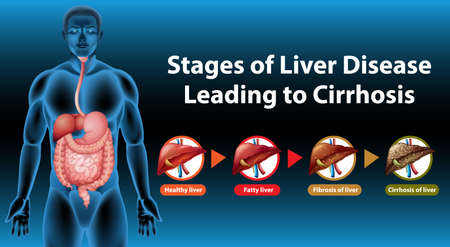Stages of liver disease leading to Cirrhosis illustration