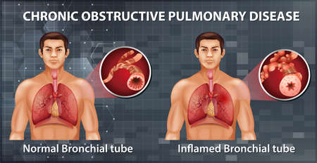 Chronic obstructive pulmonary disease illustration 向量圖像