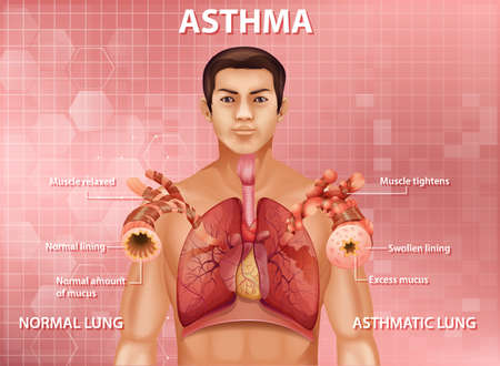 Human anatomy asthma diagram illustration 向量圖像
