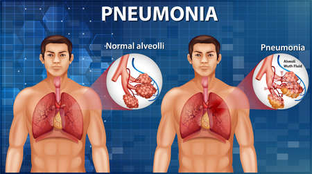 Comparison of healthy alveoli and Pneumonia illustration
