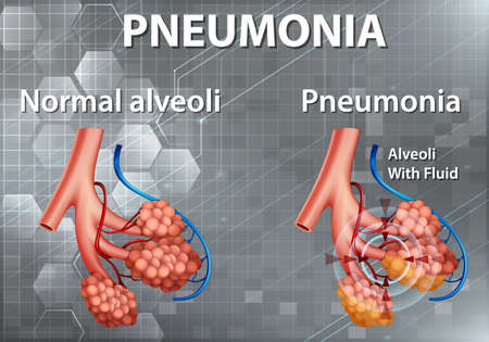 Human anatomy showing pneumonia illustration 向量圖像