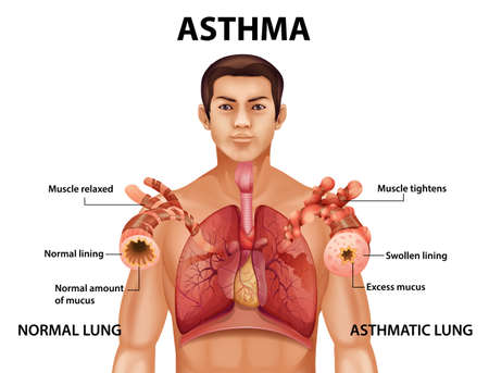 Comparison of healthy lung and Asthmatic lung illustration