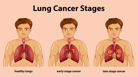 Informative illustration of lung cancer stages illustration Ilustracja