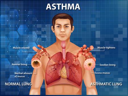 Human anatomy Asthma diagram illustration