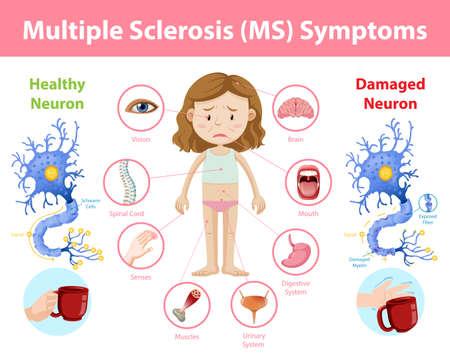 Multiple sclerosis (MS) symptoms information infographic illustration Illustration