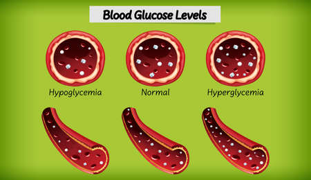 Medical blood glucose level illustration
