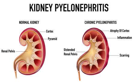 Informative illustration of Pyelonephritis illustration