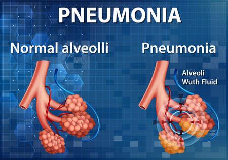 Comparison of healthy alveoli and Pneumonia illustration